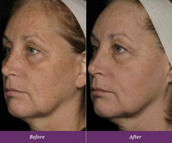 allumera-before-after-v1