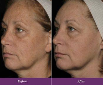 allumera-before-after-v1