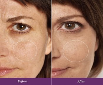 allumera-before-after-v3